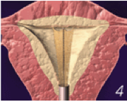 Placement of electrodes for clit stimulation Porn